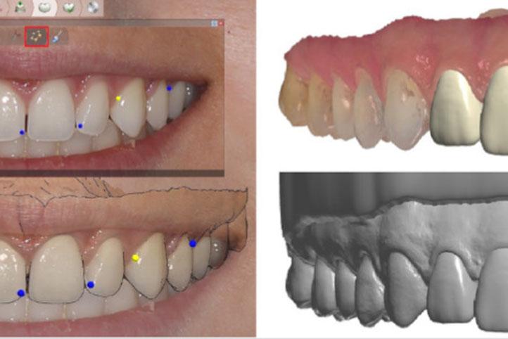 Diseño de sonrisa digital: Real view